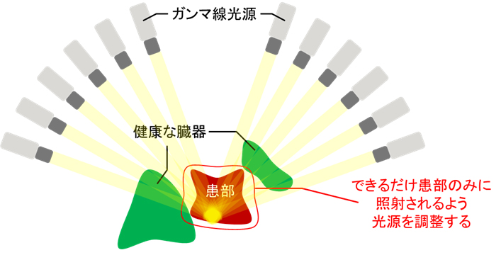 図1 ガンマナイフ治療計画のイメージ